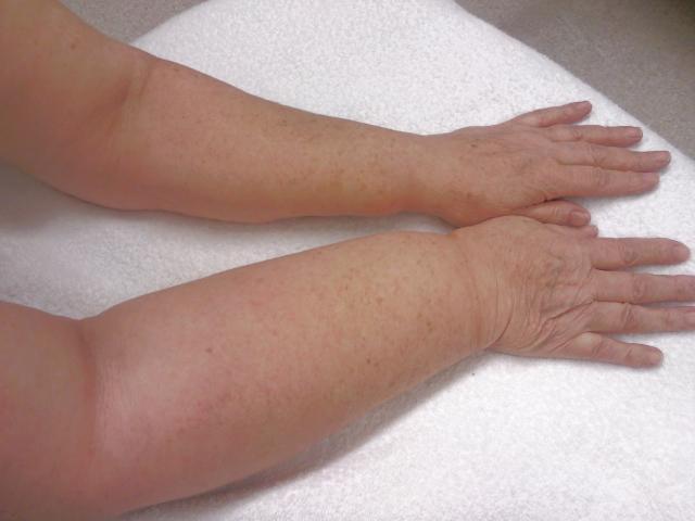 Oedeemtherapie aria huid en oedeemtherapie for Behandeling oedeem